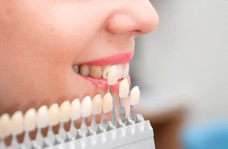 Стоматология Дмдент, Витебск - Ортопедическая стоматология