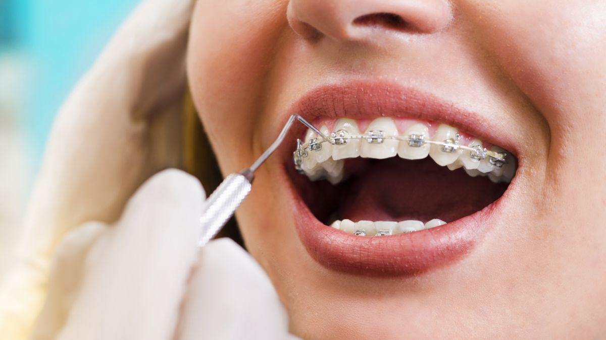 Стоматология Дмдент, Витебск - Ортодонтическая стоматология