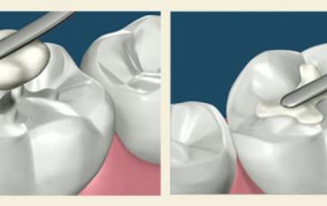 Какая зубная пломба лучше?