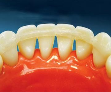 Стоматология Дмдент, Витебск - Шинирование зубов