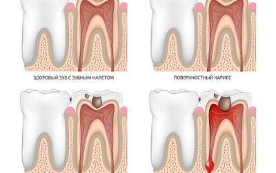 Одним из самых частых поводов обращения к стоматологу является кариес зубов.