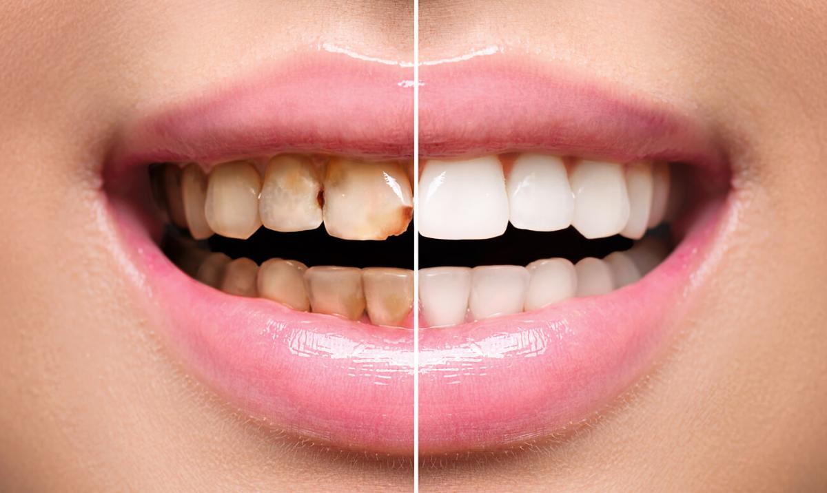 Стоматология Дмдент, Витебск - Художественная реставрация зубов