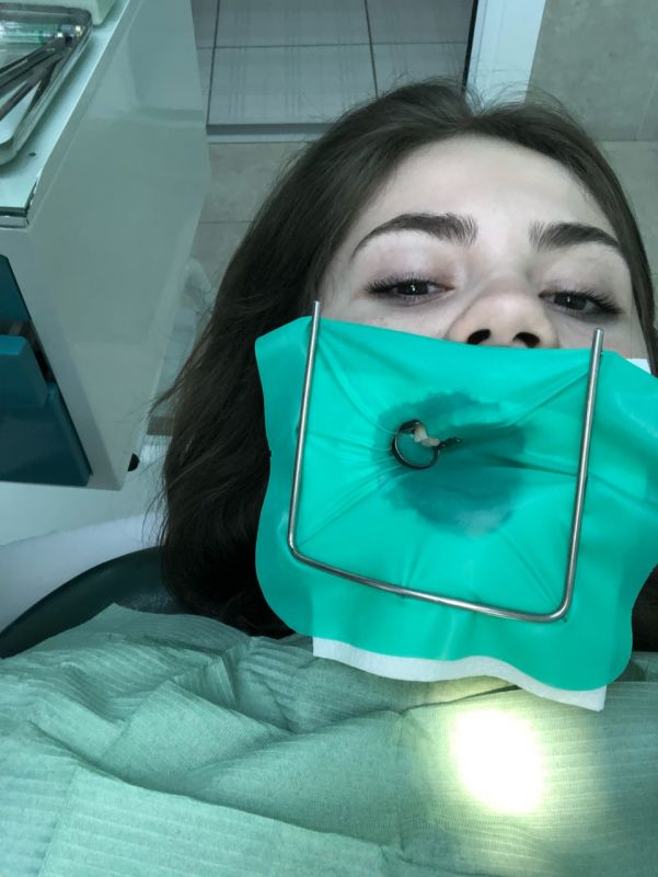 Стоматология Дмдент Витебск - С самого детства имея проблемы с зубами, с таким приспособлением (в коффердаме) меня лечили впервые.