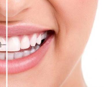 Стоматология Дмдент, Витебск - Выравнивание зубного ряда