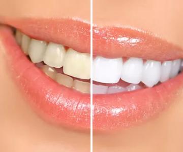 Стоматология Дмдент, Витебск - Отбеливание зубов